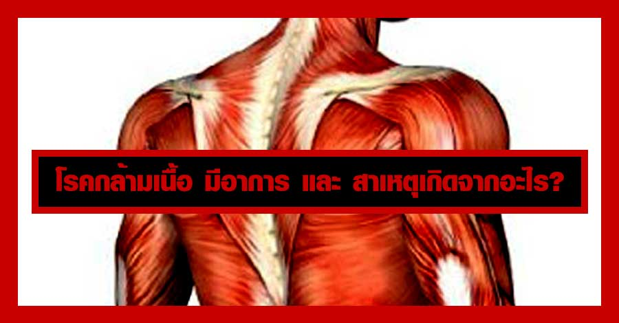 โรคกล้ามเนื้อ